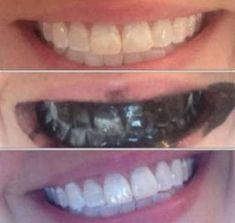 sararmış dişler nasıl beyazlar