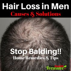 Balding Remedies How To Stop Hair Loss In Men: Baldness - Hair Loss Home Remedies Hair Remedies For Growth, Home Remedies For Hair, Hair Loss Remedies, Hair Growth, Hair Loss Causes, Prevent Hair Loss, Style Audacieux, Bald Hair, Exercises