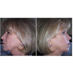 Take a picture when start to use ageLOC Galvanic Spa. See the amazing results. Tell it to your best friend ! You'll be a hero.