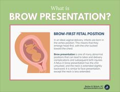 Brow presentation is one of many abnormal positions that can lead to labor and delivery complications and subsequent birth injuries. Newborn Nursing, Icu Nursing, Pediatric Nursing, Newborn Care, Nursing School Notes, Medical School, Student Midwife, Baby Nurse, Mom Baby