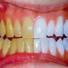 SCONVOLGENTE! I miei denti gialli sono diventati bianchissimi in 5 giorni!
