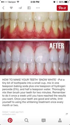 Whitening teeth