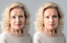Elimina las arrugas en poco tiempo con esta sencilla mascarilla casera