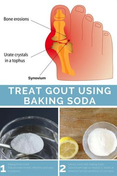 Baking Soda for Gout