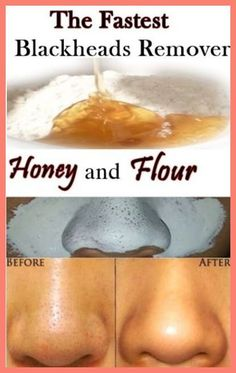 Homemade Acne Remedies - Some Tips On How To Get Rid Of Zits * You can find out more details at the link of the image. #HomemadeAcneRemedies