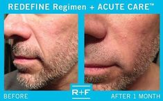 """""""I have very deep lines because I love to laugh and smile. I use the REDEFINE regimen with the REDEFINE ACUTE CARE and my results have been visibly long lasting. Thank you Rodan + Fields."""" - Ronnie, Preferred Customer. Skin products aren't just for women, men age to. The REDEFINE regimen can help you have younger looking skin so you feel confident no matter what your age."""