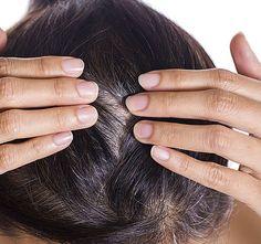 Nem csak a kilók elleni harcban segít, de az egyik legjobb természetes orvosság idő előtt őszülő hajra, hajhullásra. Így használd!
