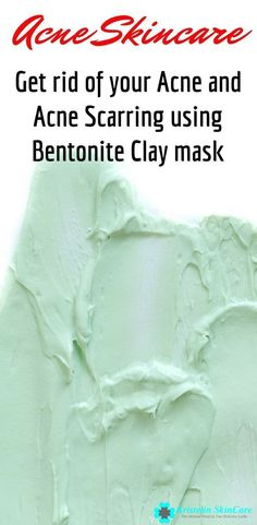 Find out how to get rid of acne and acne scars using bentonite clay. Clay Mask On Cystic Acne Cystic Acne Remedies, Cystic Acne Treatment, Back Acne Treatment, Natural Acne Remedies, Scar Remedies, Health Remedies, Bentonite Clay Benefits, Bentonite Clay Mask, Aloe Vera