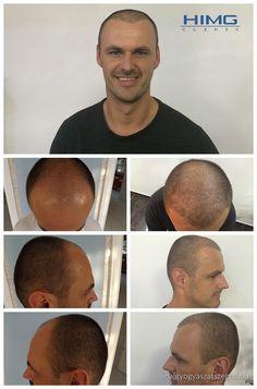 Kültreiber László - 7500 hajszál beültetése - HIMG Klinika  László fejének elülső részén történt hajhullás. A fotó a 7500 hajszál beültetését mutatja, amelyet a HIMG Klinika végzett két nap alatt.  http://hajgyogyaszatszeged.hu/