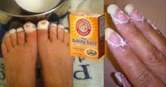 This is Why Baking Soda is One of The Most Powerful Things You Can Use. Here's What You Didn't Know About It   Totally Unique World