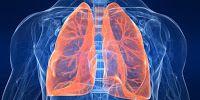 Obat Herbal Tradisional Kanker: Mengapa Harapan Hidup Kanker Paru Rendah