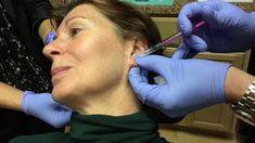 Juvederm Volbella Injection to Ear Lobes