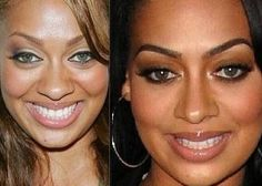 Lala before and after plastic surgery Celebrity Plastic Surgery, Celebrities Before And After, Lip Injections, After Surgery, Rhinoplasty, Movie Stars, Healthy Living, Make Up, Lips