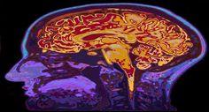 Neue Methode Steigert Intelligenz