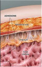What are adhesions? Adhesions are strands of tissue that form in the body in response to injury. Abdominal cavity is one of the commonest sites where adhesions tend to form. When do they occur? Occasionally adhesions are present from birth. More commonly, however, they form following abdominal operations. Everyone is different in the way his … Occupational Therapy, Physical Therapy, Abdominal Adhesions, Get Healthy, Healthy Food, Kinesiology Taping, C Section, Pelvic Floor, Endometriosis