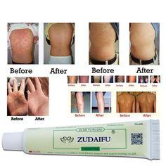 Advanced Cream for Psoriasis & Eczema Treatment