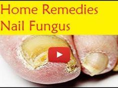 Home Remedies Nail Fungus - Fast Cure For Toenail Fungus