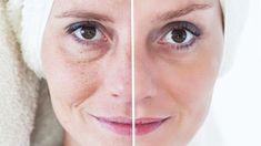 Táto maska dokáže zázraky Honey Before Bed, Reverse Aging, Jojoba, Natural Makeup Looks, Homemade Skin Care, Tips Belleza, Flawless Skin, Anti Aging Skin Care, Moisturizer