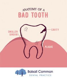 YOU DON'T HAVE to go to anatomy class to know the anatomy of your tooth! If you think your tooth might be like this one, come see us and we'll take care of you!