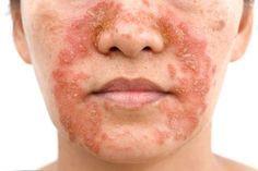La dermatite seborroica è un infiammazione cronica o comunque recidiva che  va ad interessare le 20a7ad9ddd51