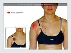 The Pectoralis Minor Trigger Points and Referred Pain