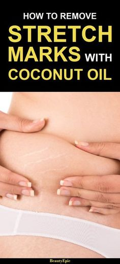 How to Remove Stretch Marks Fast with Coconut Oil