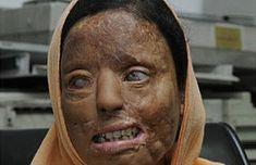 Conozca la brutal realidad de las mujeres quemadas con ácido en India y cómo la sociedad se organiza para evitarla. Lee la Guioteca sigue a @Guiteca_India