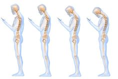 A new study suggests that looking down at a cell phone is the equivalent of placing a 60-pound weight on one's neck.