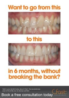 Book your free consultation at Bury Dental Centre now and start that short journey to straighter teeth. :)