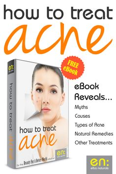 Signs Of Stress, Types Of Acne, Acne Blemishes, Acne Free, How To Treat Acne, Elba, Diy Skin Care, Natural Remedies, Homemade Skin Care