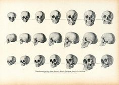 1908 Transformation of the human skull from childhood to old age Antique Human Skull Anatomy, Origin Human Skull Anatomy, History Encyclopedia, Skull Illustration, Animal Anatomy, Old Age, Antique Prints, Natural History, French Vintage, Illustrations Posters