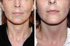 Health Journal: Un nuevo tratamiento antiarrugas de 28 días.