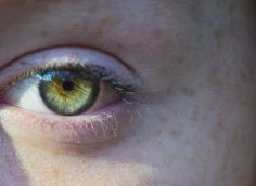Pale green + yellow eye with central heterochromia. These are very close to what my eyes look like. Especially with the dark ring around the outer edge of the iris.