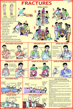 First Aid Charts Exporter, Manufacturer, Distributor, Supplier & Wholesaler, Fir. - Survival Gear First Aid - Health Survival Life Hacks, Survival Guide, Survival Gear, Survival Skills, Survival Quotes, Wilderness Survival, Survival Equipment, Camping Survival, Emergency First Aid