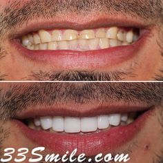 Ground your teeth down? Weve got you covered with veneers! #drjamsmiles #33Smile . . All photos and video of patients are of our actual patients. All media is the of Cosmetic Dental Associates. Any use of media contained herein is prohibited without written consent. . . #satx #satxdentist #dentistry #goals #smile #teeth #instagoals #transformationtuesday #beforeandafter #whiteteeth #perfect #transformation #teethwhitening #veneers #Invisalign #porcelainveneers #sanantonio #orthodontics… Insta Goals, Porcelain Veneers, Dental Cosmetics, Smile Teeth, Dental Procedures, Cosmetic Dentistry, Transformation Tuesday, Orthodontics, Beautiful Smile
