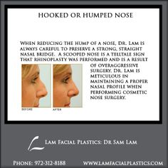 Hooked or humped nose rhinoplasty is a common procedure when a nose with a prominent bump or hump can detract from overall facial harmony. Hooked or Humped Nose rhinoplasty procedures are performed @LamFacialPlastics by Dr Lam personally, at his Cosmetic Surgery center in Dallas, Texas. #LamFacialPlastics #DallasPlasticSurgery #PlasticSurgery #DrSamLam  #Rhinoplasty #NoseJob #HumpedNose #HookedNose