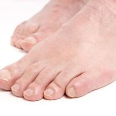 REMEDIES FOR TOENAIL FUNGUS Even though they are not harmful, plantar warts can be painful and unpleasant to look at. Both of these factors can cause a great deal of stress for those afflicted with them. Plantar warts can be . Toenail Fungus Remedies, Toenail Fungus Treatment, Fungus Toenails, Fingernail Fungus, Scholl Velvet Smooth, Toe Fungus, Nail Treatment, Home Remedies, Aspirin