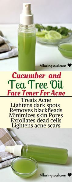 Face Toner For Acne Cucumber and tea tree face toner soothes skin, helps you to get rid of hateful acne and pimples.Cucumber and tea tree face toner soothes skin, helps you to get rid of hateful acne and pimples. Acne And Pimples, Acne Scars, Pimple Scars, Acne Remedies, Natural Remedies, Herbal Remedies, Anti Pickel Creme, Cucumber For Face, Diy Masque