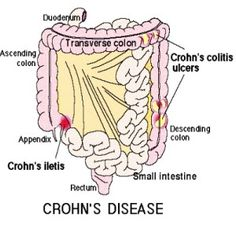 Important Bowel Disorders Treatments