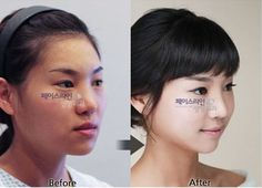 Korean Plastic Surgery Before Always interesting what you can find when you type in elective surgery and other related terms
