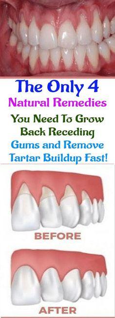 The Only 4 Natural Remedies You Need To Grow Back Receding Gums and Remove Tartar Buildup Fast! #health #healthyteeth #healthygums #recedinggums #dentalcare #homeremedies #naturalremedies #diy #remedies #gumhealth