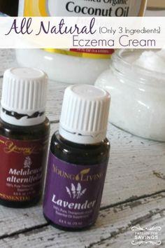 All Natural Eczema Cream Recipe- 1/2 c coconut oil, 20 drops lavender, 5 drops melaleuca