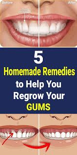 Home Remedies For Acne, Skin Care Remedies, Natural Health Remedies, Combination Skin Care Routine, Gum Inflammation, Health Facts, Health Diet, Health Fitness, Diy Skin Care