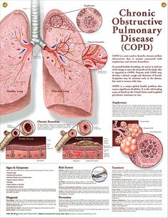 Chronic Obstructive Pulmonary Disease anatomy poster anatomy poster describes COPD, normally associated with emphysema and chronic bronchitis. Pulmonology chart for doctors, nurses and students. Nursing Tips, Nursing Notes, Study Nursing, Asthma, Respiratory Therapy, Respiratory System, Medical Coding, Medical Information, Medical Conditions