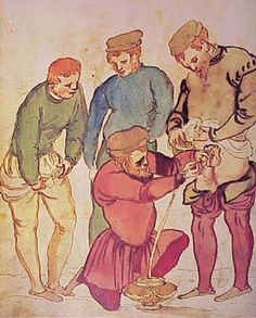 What we consider a minor nuisance in most hospitals today was once a matter of excruciating and occasional fatal pain in the middle ages. Due to various venereal diseases and a lack of antibiotics, many people suffered from a blocked bladder. One way to fix that was to insert a long metal tube in through the urethra and, eventually, unblock the bladder. Read more at http://all-that-is-interesting.com/painful-medicine-medieval-times#CbRVQCHbBwwxXpcw.99