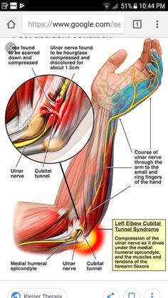 Cubital tunnel syndrome- compression of the ulnar nerve as it dives under the me. - Health and wellness: What comes naturally Muscle Anatomy, Body Anatomy, Elbow Anatomy, Occupational Therapy, Physical Therapy, Cubital Tunnel Syndrome, Elbow Pain, Med School, Tennis Elbow