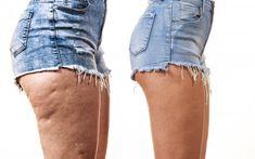 Te compartimos una saludable bebida con pimienta de cayena para combatir la celulitis en las piernas. ¡No dejes de probarla!