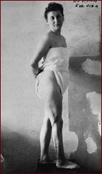 Nazi doctors sliced open the leg of Ravensbruck survivor Jadwiga Dzido (shown here) and deliberately infected the wound with bacteria, dirt, and glass slivers to simulate a battlefield injury. They then treated the wound with sulfanilamide drugs.