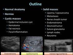 Lymph Nodes, Anatomy, Artistic Anatomy