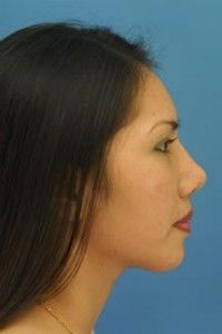 Welcome to Rhinoplasty Master -- your #1 guide to Dr. Philip J. Miller's practice in Rhinoplasty procedures. Whether you're looking for the best Rhinoplasty surgery option in New York City or just interested in obtaining more information about nose surgery options in general, you are guaranteed to finding what you want on this website. Ethnic Rhinoplasty, Rhinoplasty Surgery, Nose Surgery, Best Friend Gifts, Best Friends, Rhinoplasty Before And After, Welcome, Facial, York